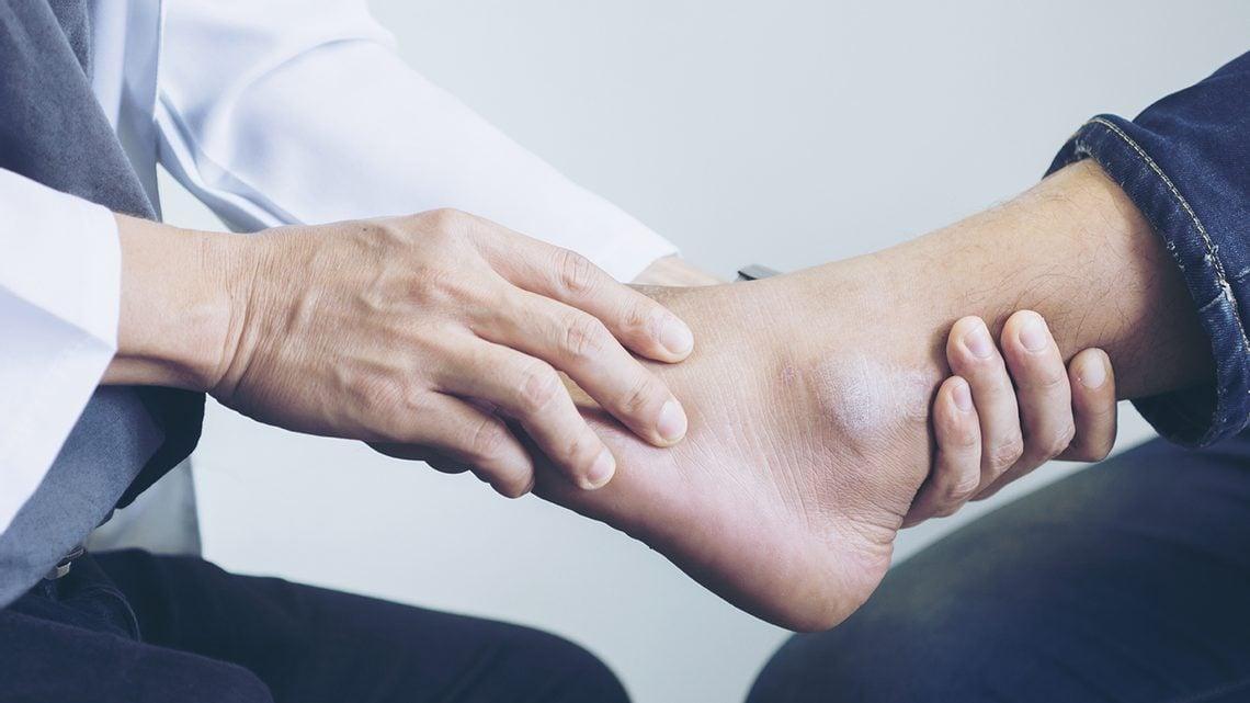 Bänderdehnung im Fuß: Tipps | Bänderverletzungen